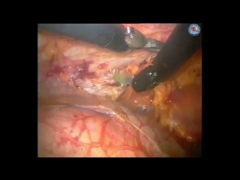 Robotic thymectomy for myasthenia gravis