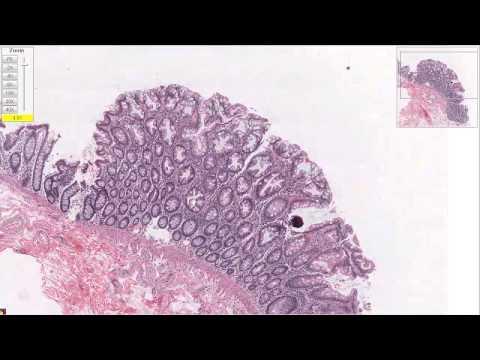 Гиперплазия толстой кишки