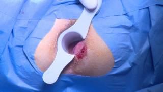 Laser hemorrhoidoplasty No1 Laser proctology seminar Vilnius, Clinic 2016