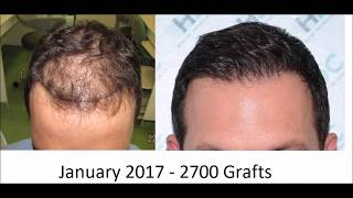 HDC Hair Transplant Clinic Results Calendar for 2017