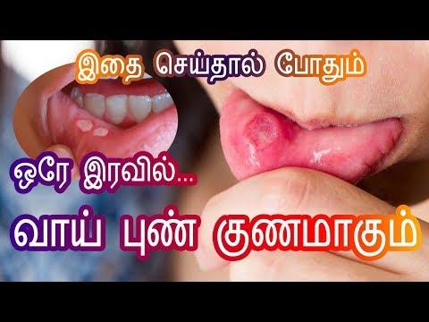 வாய் புண் குணமாக Mouth Ulcer Treatment Home Remedy in Tamil Beauty Tips - Vai Pun - Tamil Health Tip