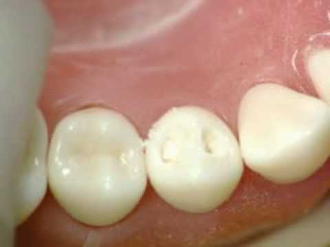 Cl I cavity lower 1st Premolar/ amalgam / GV Black / Dr  Ahmed Sleibi