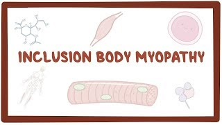 Inclusion body myopathy - causes, symptoms, diagnosis, treatment, pathology