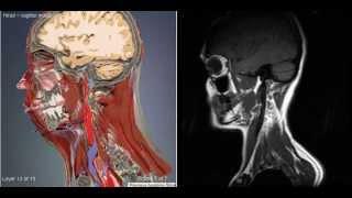 КТ сагиттальный разрез головного мозга и головы / CT sagittal head model(Компью́терная томогра́фия головного мозга и головы — метод неразрушающего послойного исследования внутр..., 2015-03-24T09:15:19.000Z)