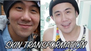 How I cured his skin! Skin redness, dry, & sensitive skin ft. Joseph Germani | SKIN TRANSFORMATION