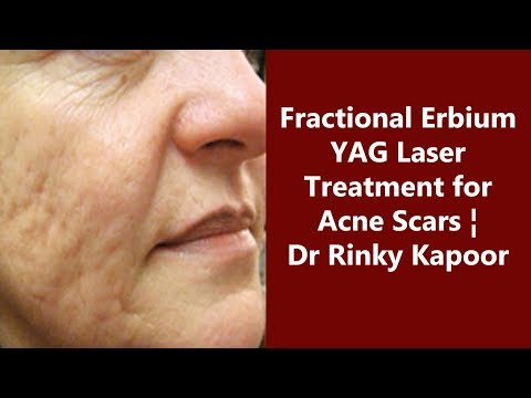 Acne Scars Removal by Fractional Erbium YAG Laser Treatment | The Esthetic Clinic, India