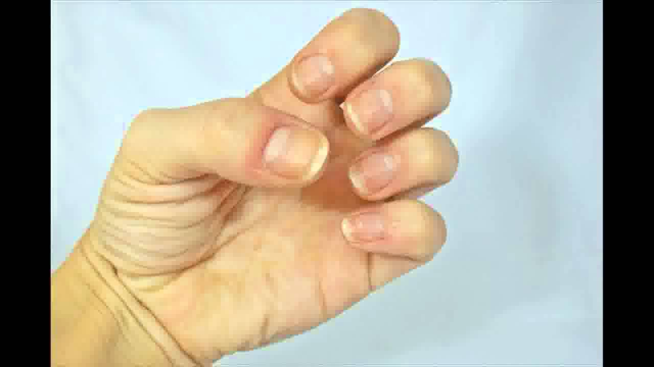how to stop biting skin around fingernails
