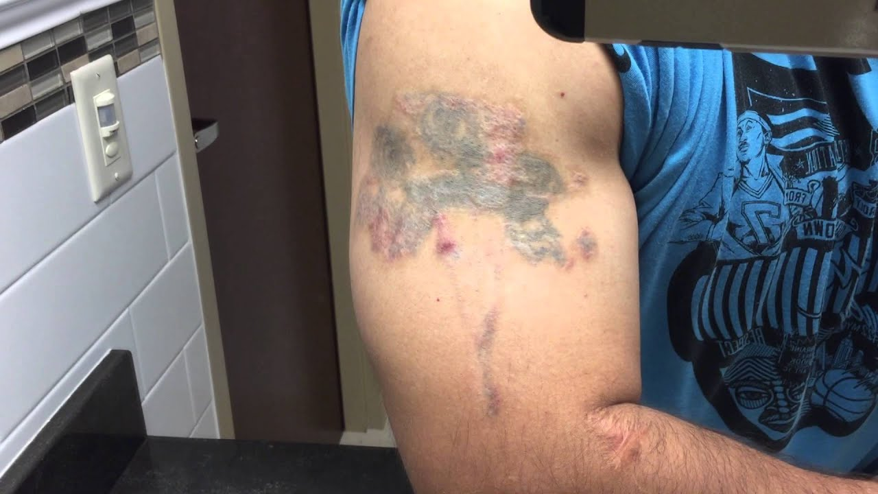 TCA 50% Tattoo Removal - 6 Month Update - YouTube