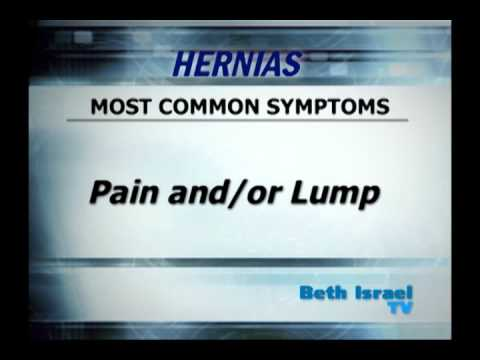 Hernia Treatment. Dr. I. Michael Leitman, Surgeon At Beth Israel Medical Center In NYC
