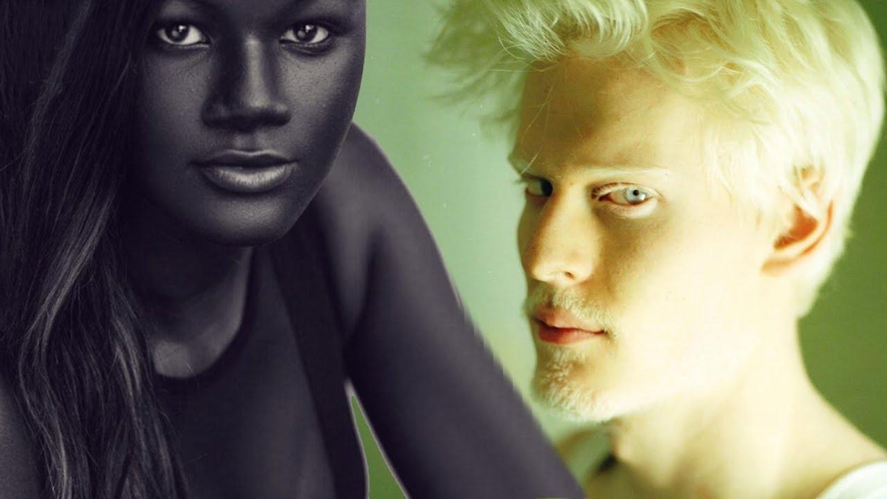 6 Menschen Mit Einzigartiger Hautfarbe Youtube Interiors Inside Ideas Interiors design about Everything [magnanprojects.com]