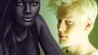 6 Menschen mit einzigartiger Hautfarbe