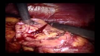Néphrectomie partielle avec assistance robotique 2013