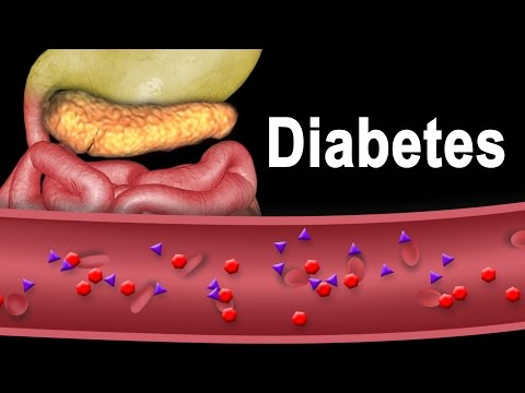 Diabetes Type 1 and Type 2, Animation.
