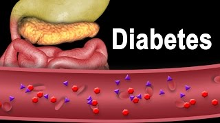 Diabetes Type 1 and Type 2, Animation.(This video and similar images/videos are available for instant download licensing here ..., 2014-12-08T17:09:49.000Z)