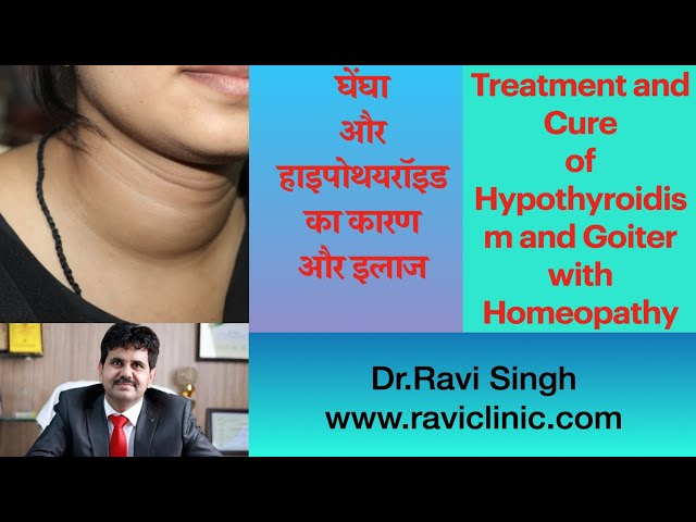 Treatment and Cure of Hypothyroidism and Goiter with Homeopathy Dr.Ravi Singh