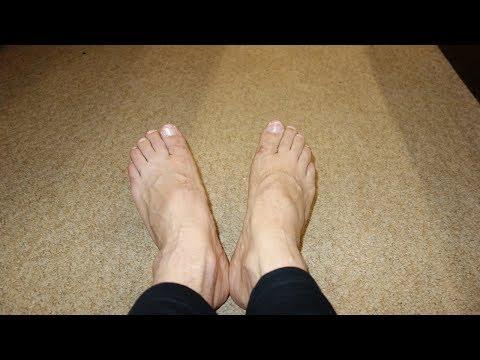 Как лечить грибок на ногах. Лечение грибка народными средствами (масло чайного дерева) № 13