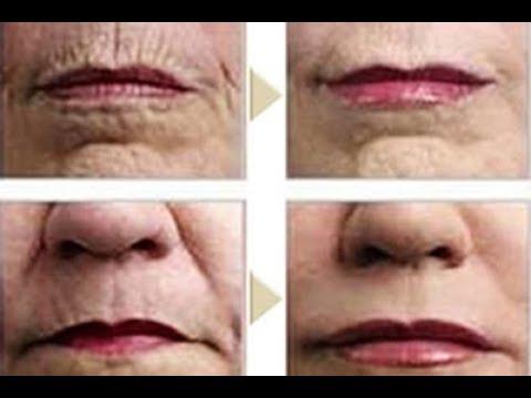 تشبيب الوجه بجرح صغير وخيوط ذهبية داخلية