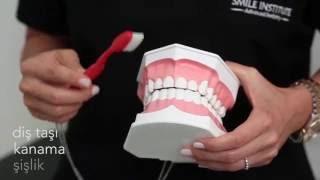 Doğru Diş Fırçalama  - Smile Institute - Emek Saran