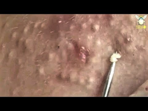How To Get Rid Of Acne - Blackheads & Whiteheads Removal With Oddly Satisfying Relaxing Music 29956!