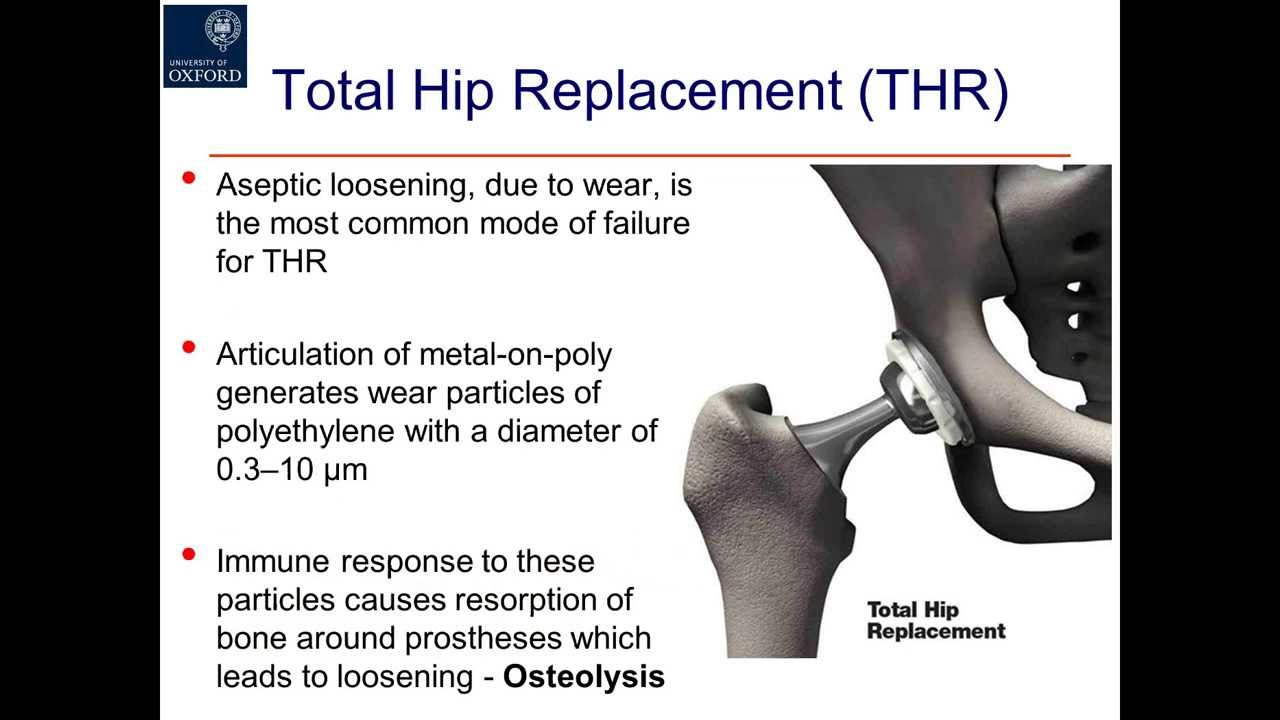 Evaluation of the Hip: History and Physical Examination