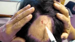 alopecia areata injections