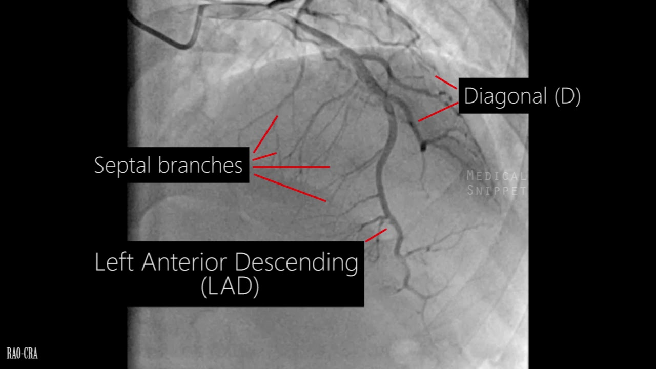 Coronary Artery Anatomy Coronary Angiogram Youtube