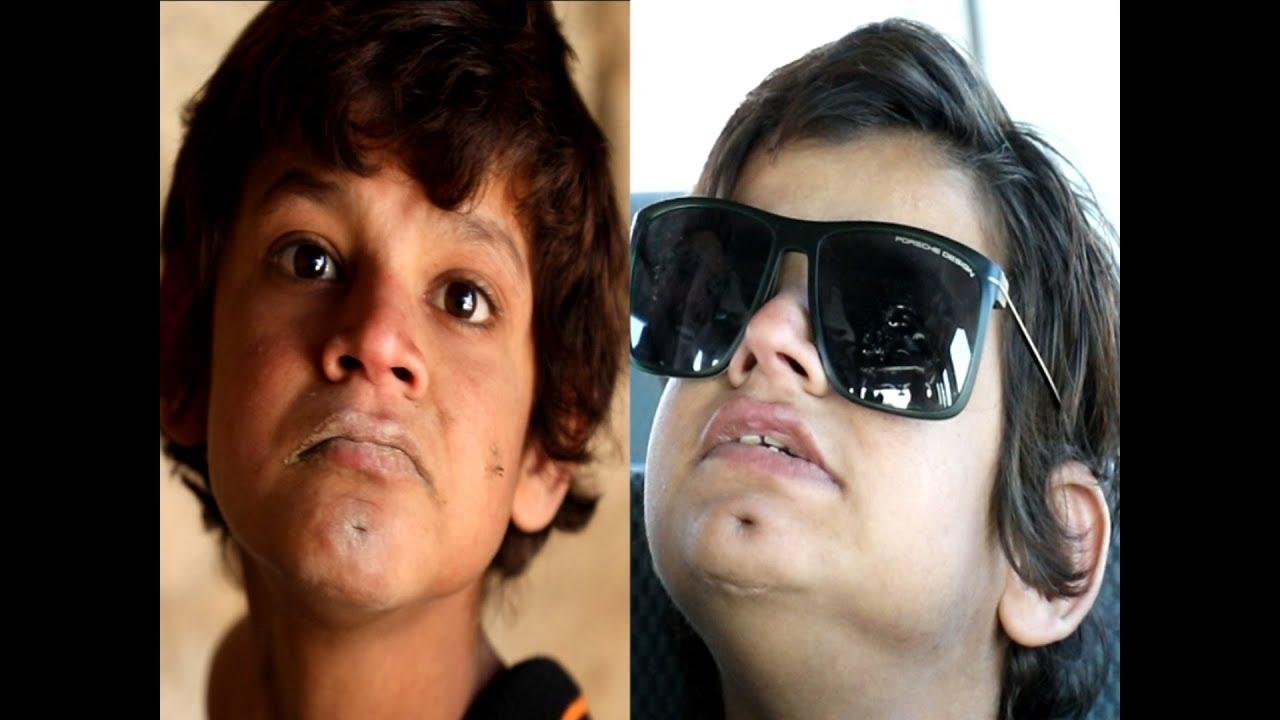 ملخص/طفل يعيش مع الحيوانات 10 سنوات وياكل فضلاتهم وينام معهم شاهد كيف تم انقاذ الطفل/علي عذاب