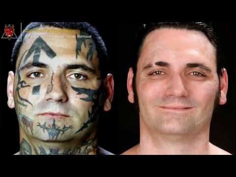 👹 Remove Tattoo With Salt – Everything you need to learn about tattoo removal. Article teaser