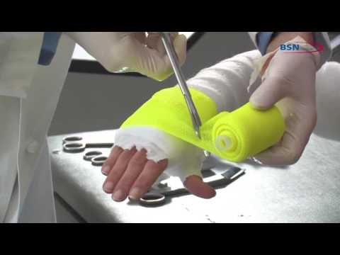 Synthetic Casting Long Arm Application EN