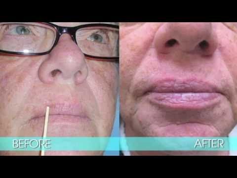 EXCISION OF BASAL-CELL CARCINOMA OF THE LIP - DR. TANVEER JANJUA - NEW JERSEY