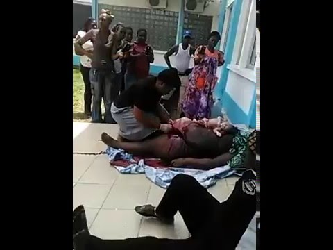 Cameroon *dead* woman gives birth by knife operation outside hospital premises