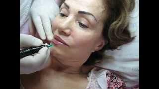 Tatuaj buze Bucuresti Zarescu Dan 0745001236 tatuaj semipermanent buze http://www.machiajtatuaj.ro