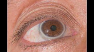 ¿Tiene un anillo blanco en el iris? Lo que los ojos dicen sobre su salud