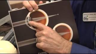 How Glasses Work Farsighted Richie Eye Basics REC MN