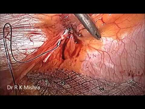 Laparoscopic Repair of Small Umbilical Hernia without Mesh