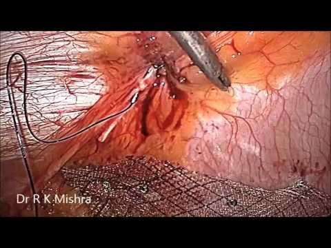 Laparoscopic Repair of Small Umbilical Hernia without Mesh ...