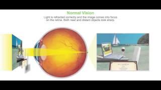 Normal Vision at Eye Associates of Wilmington