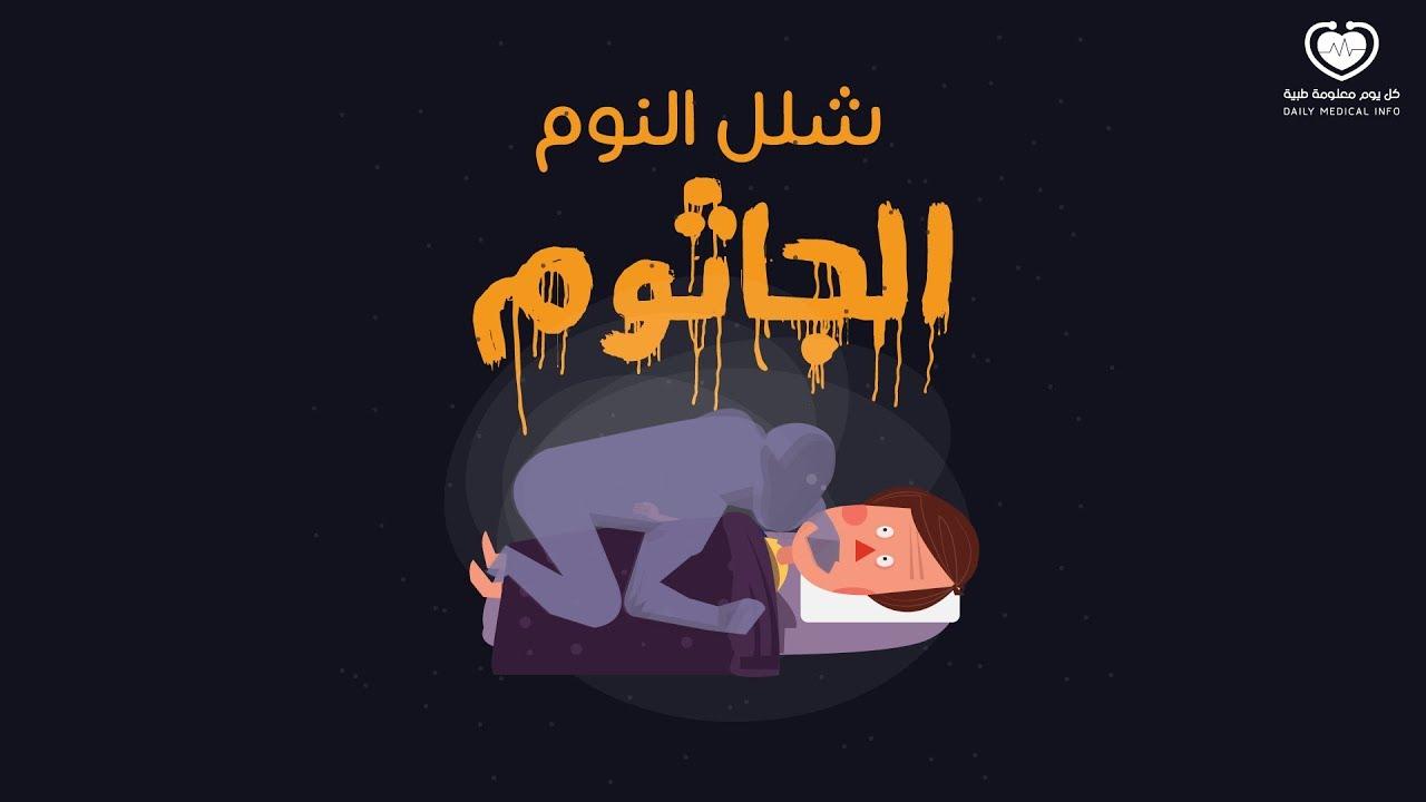 شلل النوم ما هو و كيفية علاجه