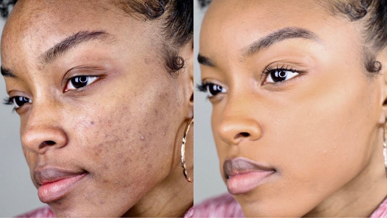 How To Cover Acne Dark Spots Without A Lot Of Makeup Slim Reshae