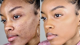 How to cover acne/dark spots WITHOUT a lot of makeup | Slim Reshae