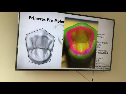 Dental Anatomy: Premolarsиз YouTube · Длительность: 35 мин54 с