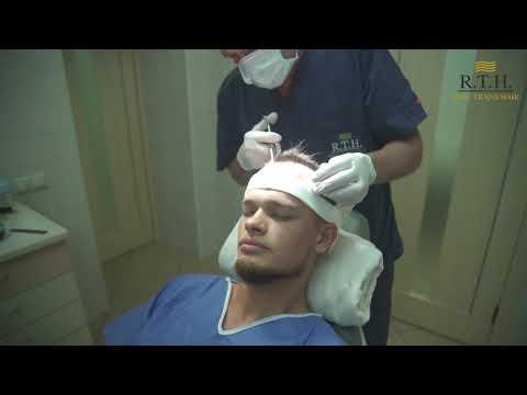 Пересадка волос для мужчин в Real Trans Hair