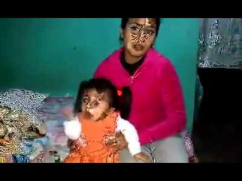 En Tepic,solicitan ayuda para niña enferma de Osteogenesis Imperfecta