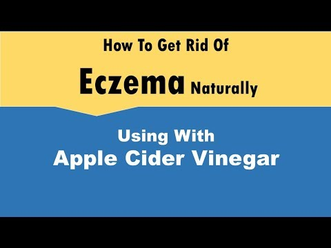 how-to-get-rid-of-eczema-with-apple-cider-vinegar