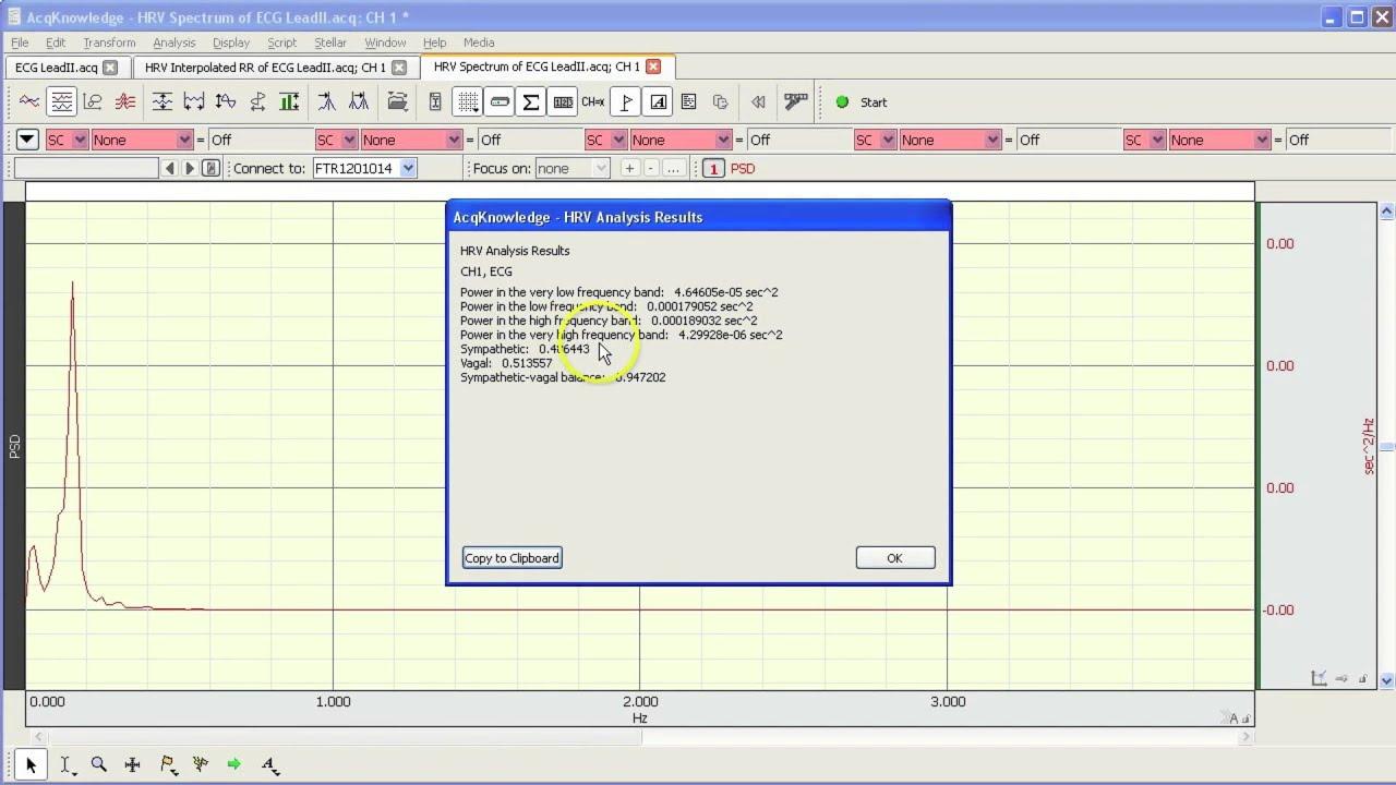 ECG Analysis | BIOPAC