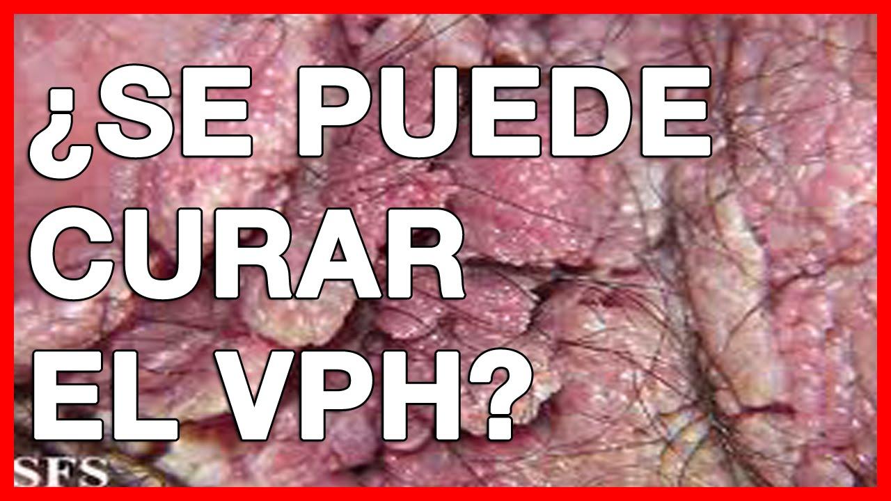 Papilloma virus sintomas,