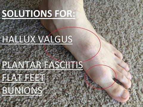 easy-solutions-for-bunions,-flat-feet,-plantar-fasciitis,-hallux-valgus