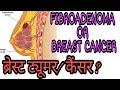 ब्रेस्ट में लंप || FIBROADENOMA AND FIBROCYSTIC BREAST. IN HINDI / URDU