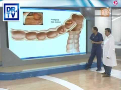 DR TV PERU 17-04-2012 - 3 El Asistente del Día- Colonoscopía