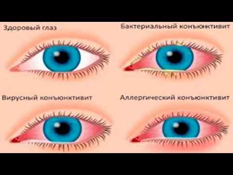Хорошие глазные капли от коньюктивита